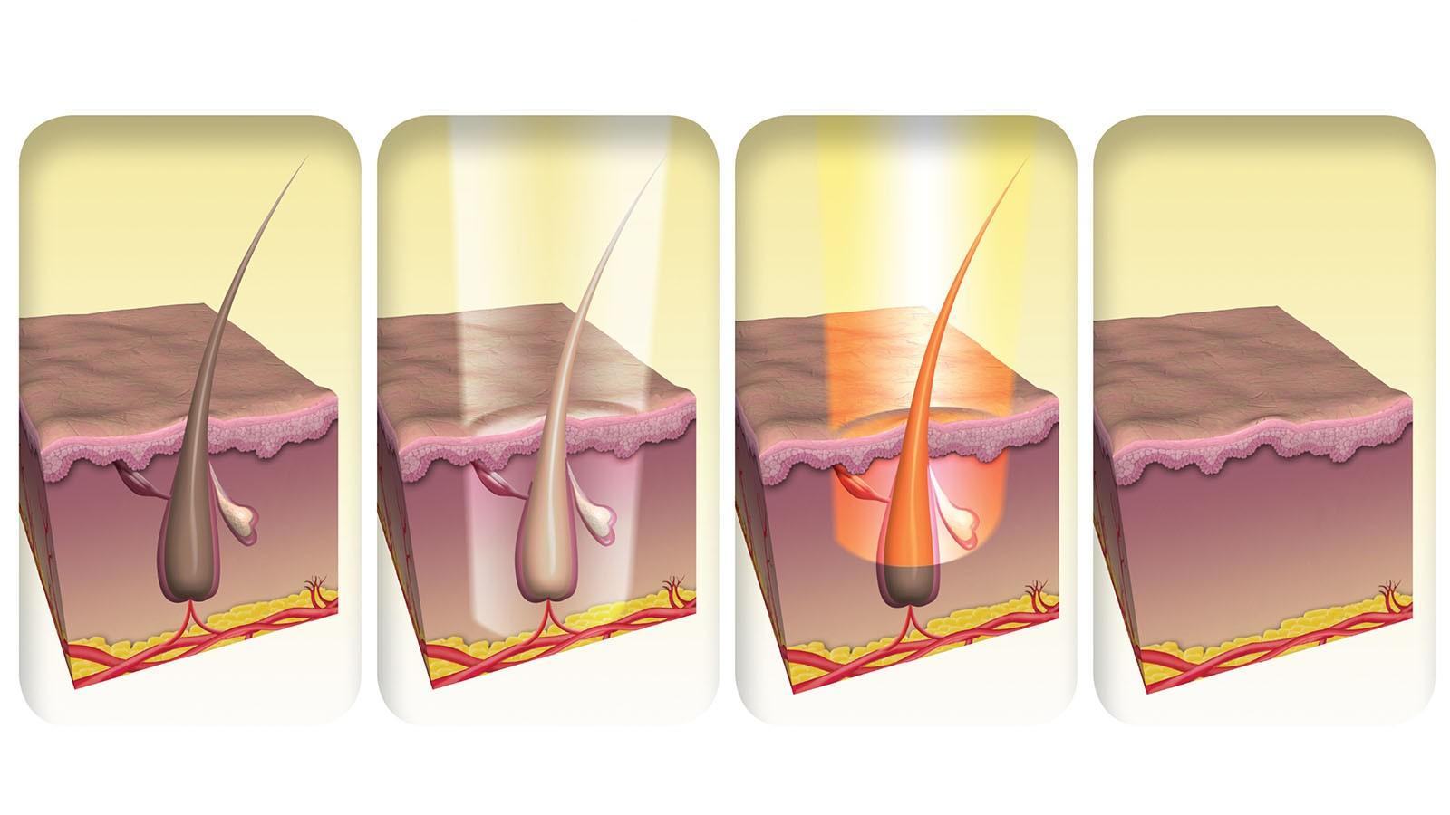 Как работает лазерная эпиляция
